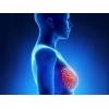 Операции при раке молочной железы в Китае