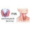 Операция опухоли щитовидной железы